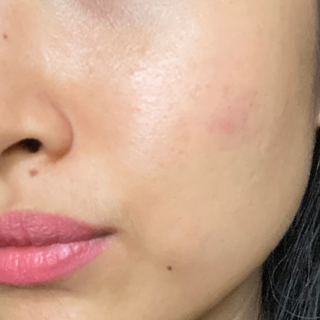 Pimples, redness, and irritation caused by wearing masks.